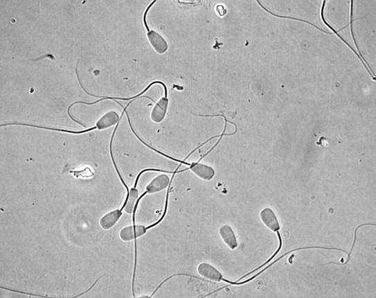 Abnormal sperm quality sexxxy